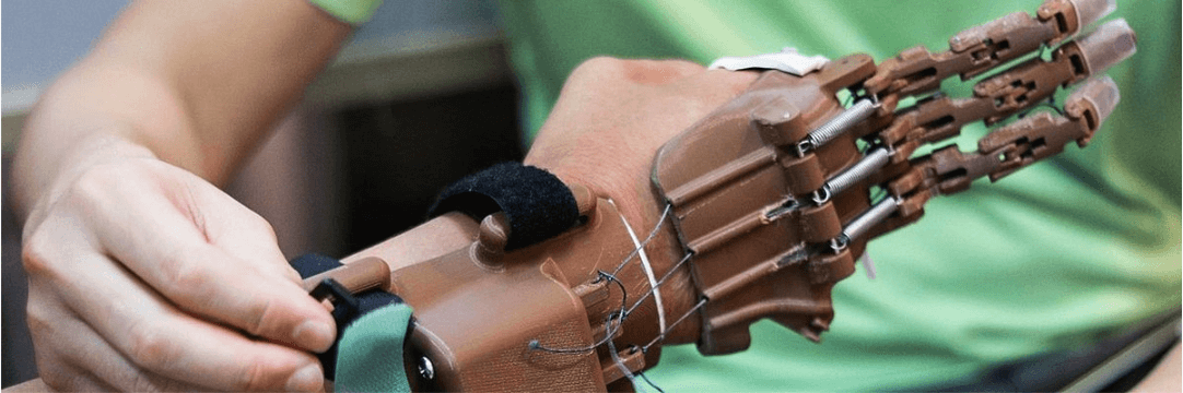 3D Printing Reduce Costs of Prosthetic Hands