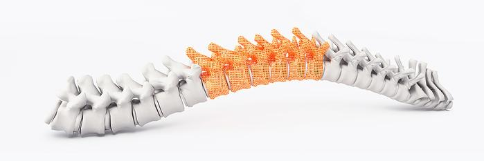 Spinal Surgeries See Increased Success Rate with 3D Printed Guides